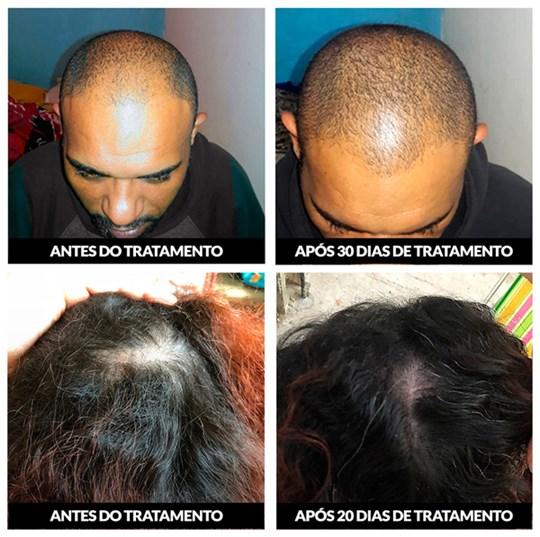 Antes e depois nanoa pro hair