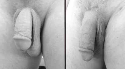 antes e depois volumão