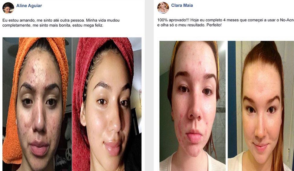 antes e depois no acne